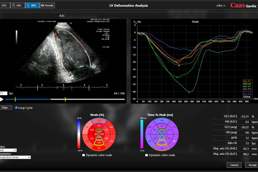 Myocardial strain analysis