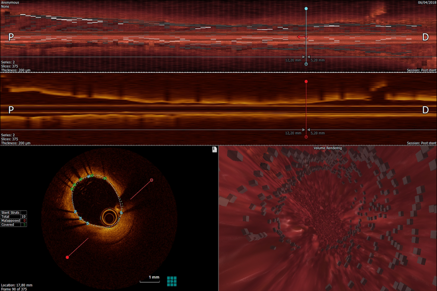 Stent fly through