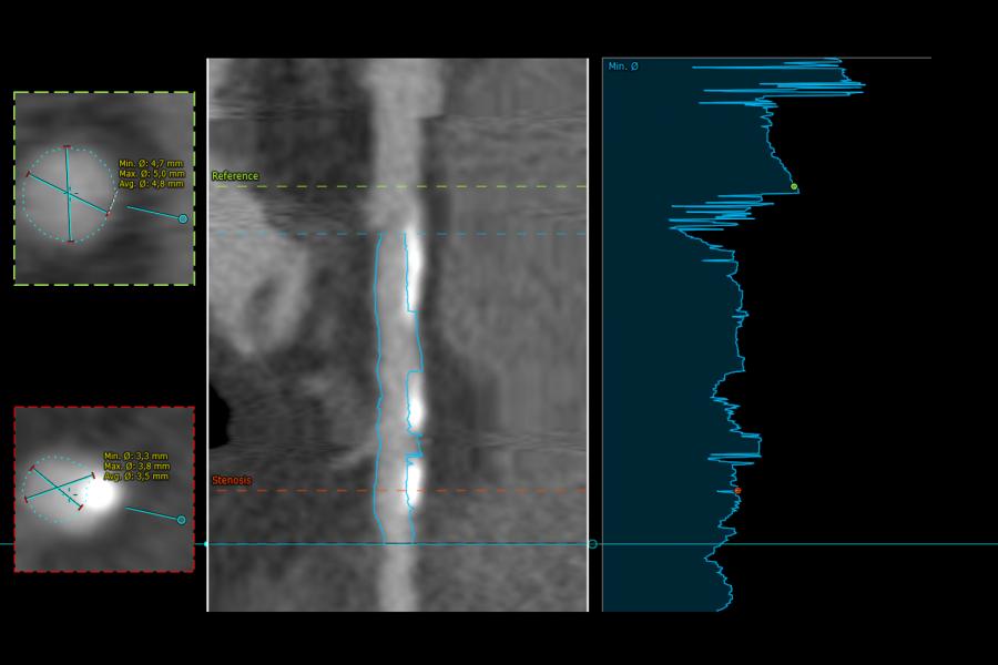 Coronary stenosis